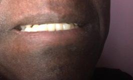 76 % des sénégalais souffrent de carie dentaire selon le Dr Codou Badiane