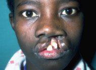 Une trentaine de patients opérés gratuitement du bec-de-lièvre à Thiès