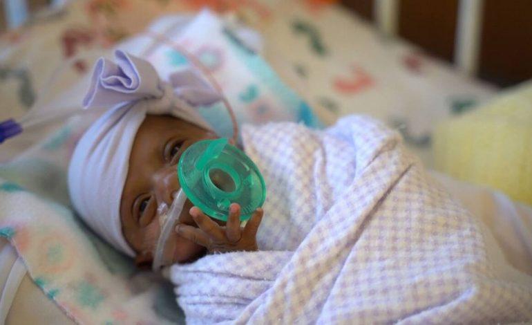 23 centimètres et 245 grammes: le plus petit bébé du monde est né en Californie