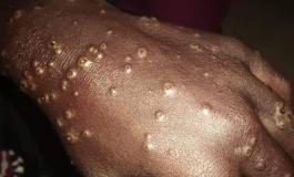 La dermatose constatée chez des pêcheurs sénégalais ne proviennent pas de produits chimiques selon Alioune Ndoye