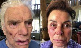 Les photos chocs de Bernard Tapie et son épouse après leur sauvage agression ce week-end